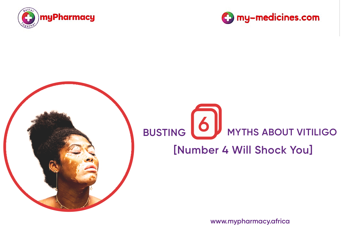 Busting 6 Myths About Vitiligo | Number 4 Will Shock You